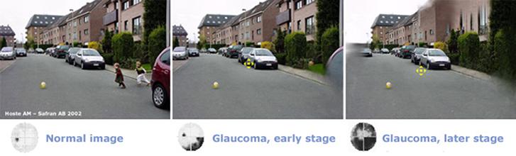 glaucoma-6
