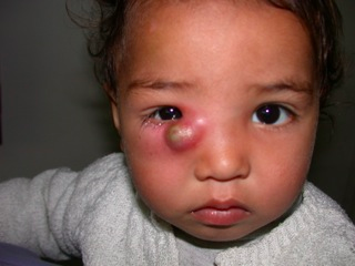 oftalmologia-en-niños-8